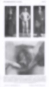 Hermaphroditische-Vorstufe-blurred